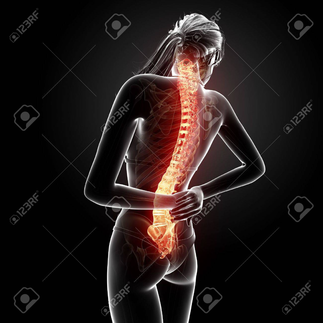 Female Back Pain Anatomy In Black Stock Photo, Picture And Royalty ...