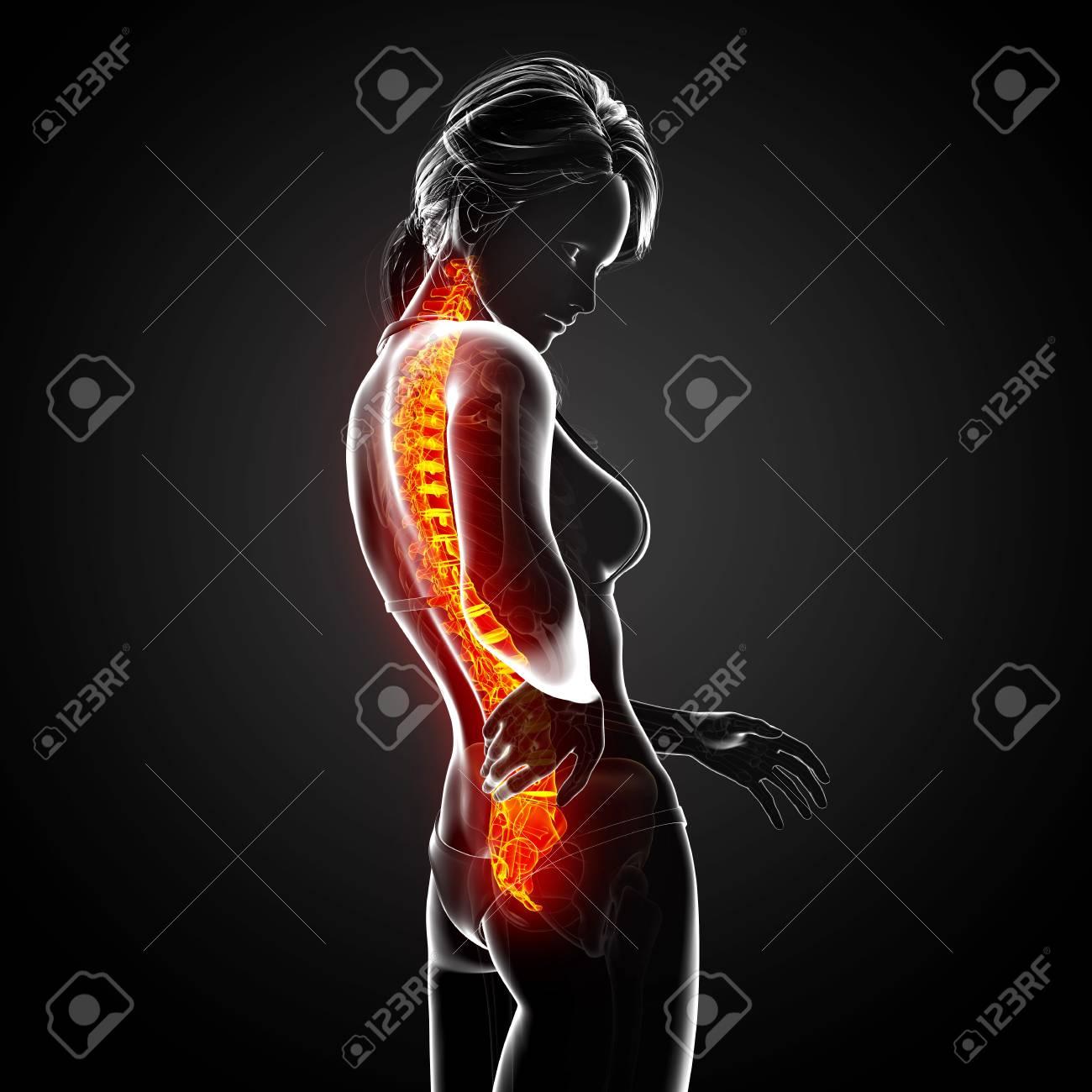 Illustration Of Female Back Pain Anatomy In Black Stock Photo ...