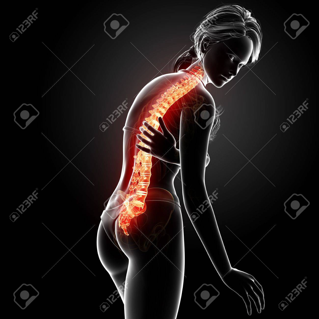 Illustration Of Female Back Pain Anatomy In Black Stock Photo ...