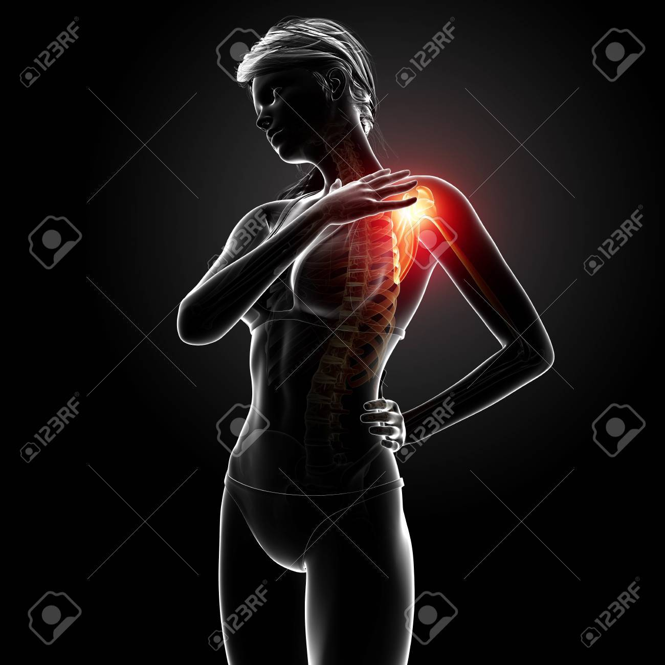Illustration Of Female Shoulder Pain Anatomy In Black Stock Photo ...