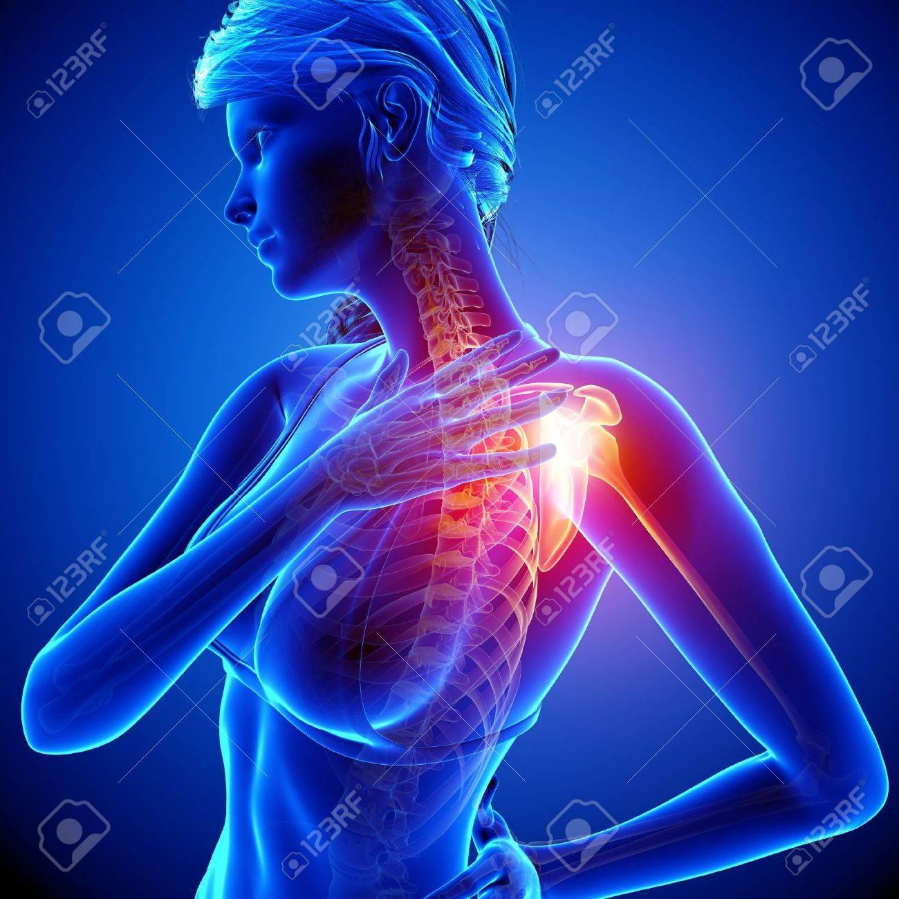 Illustration Of Female Shoulder Pain Anatomy In Blue Stock Photo ...