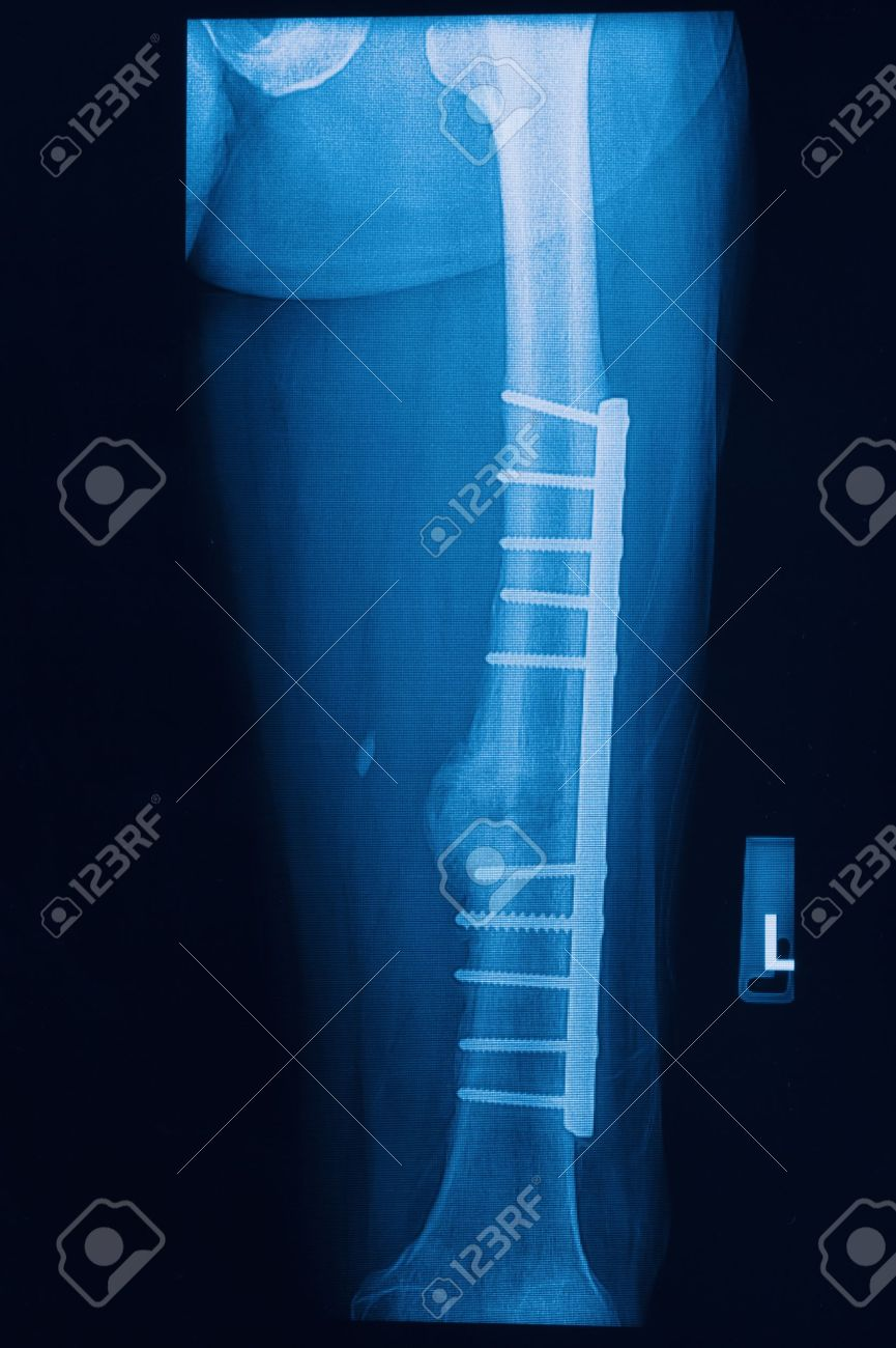 broken human thigh x-rays image with implant ( plate and screw ) Stock Photo - 17115739