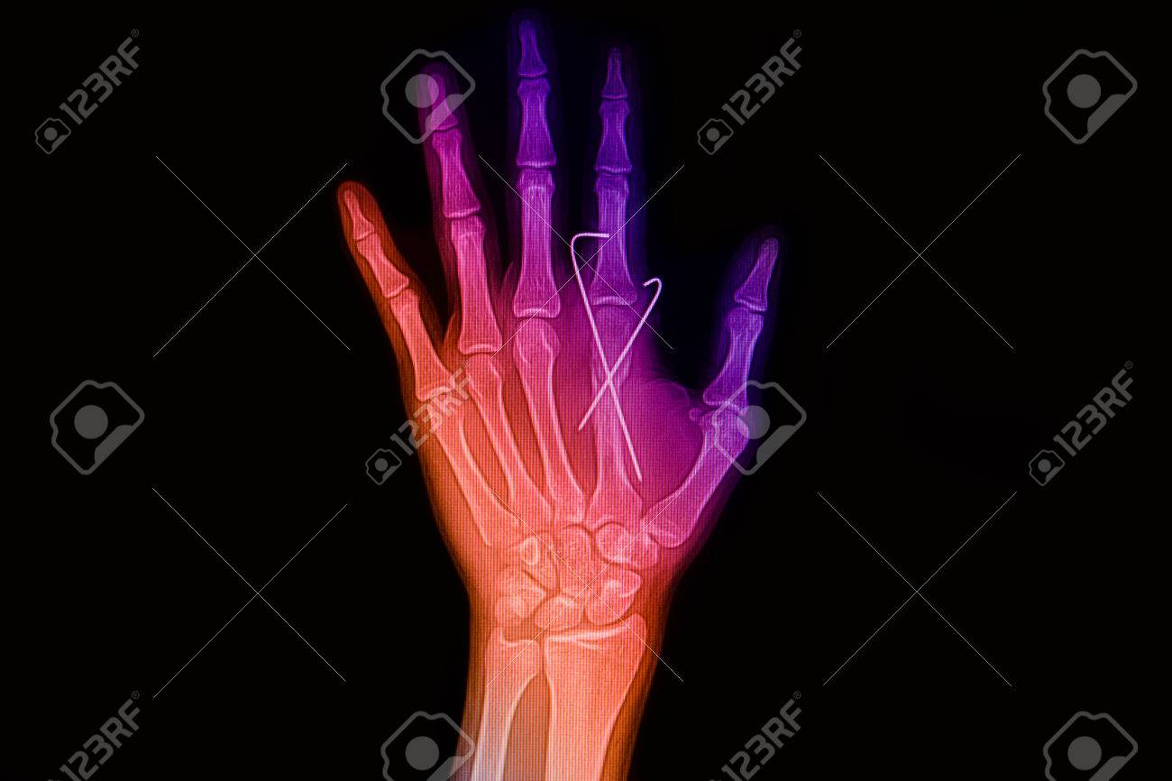 Colorful Wrist And Hand X-rays Image Show Fracture Index Finger ...