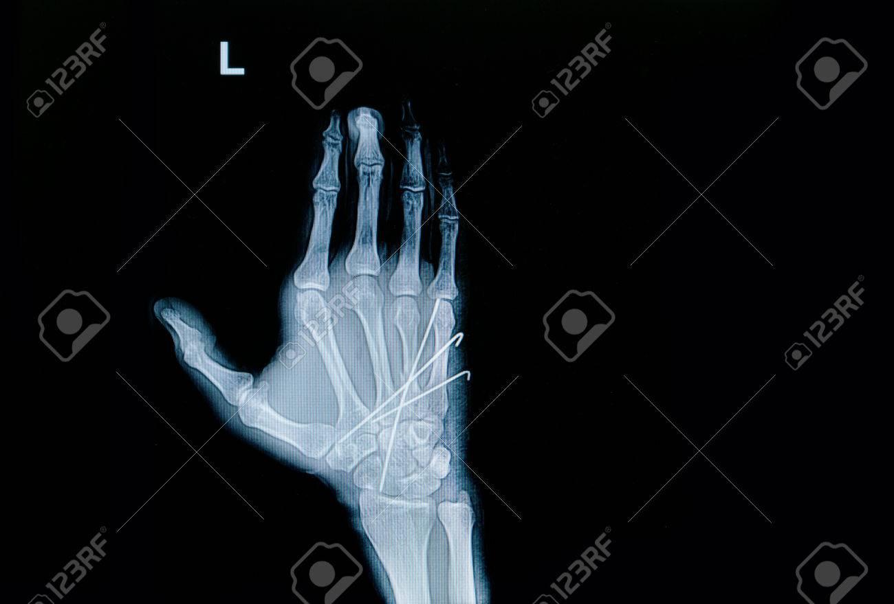 Film X-ray Of Hand Fracture : Show Fracture Metacarpal Bone Insert ...