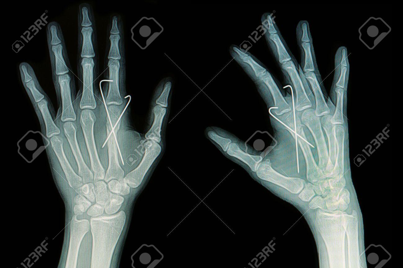 Film X-ray Of Hand Fracture Show Fracture Metacarpal Bone Insert ...