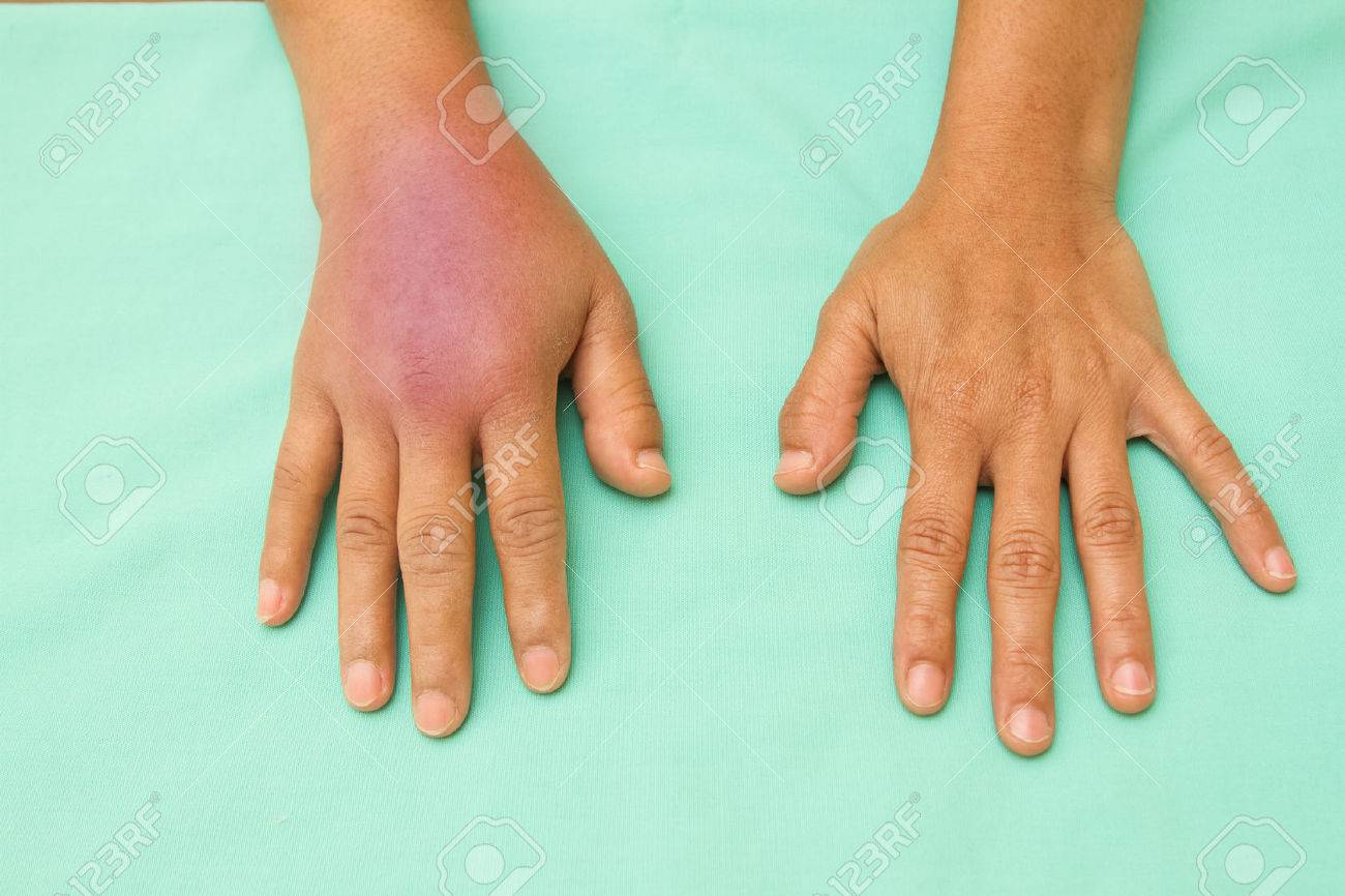 Female hands one swollen and inflamed after accident - 39039166