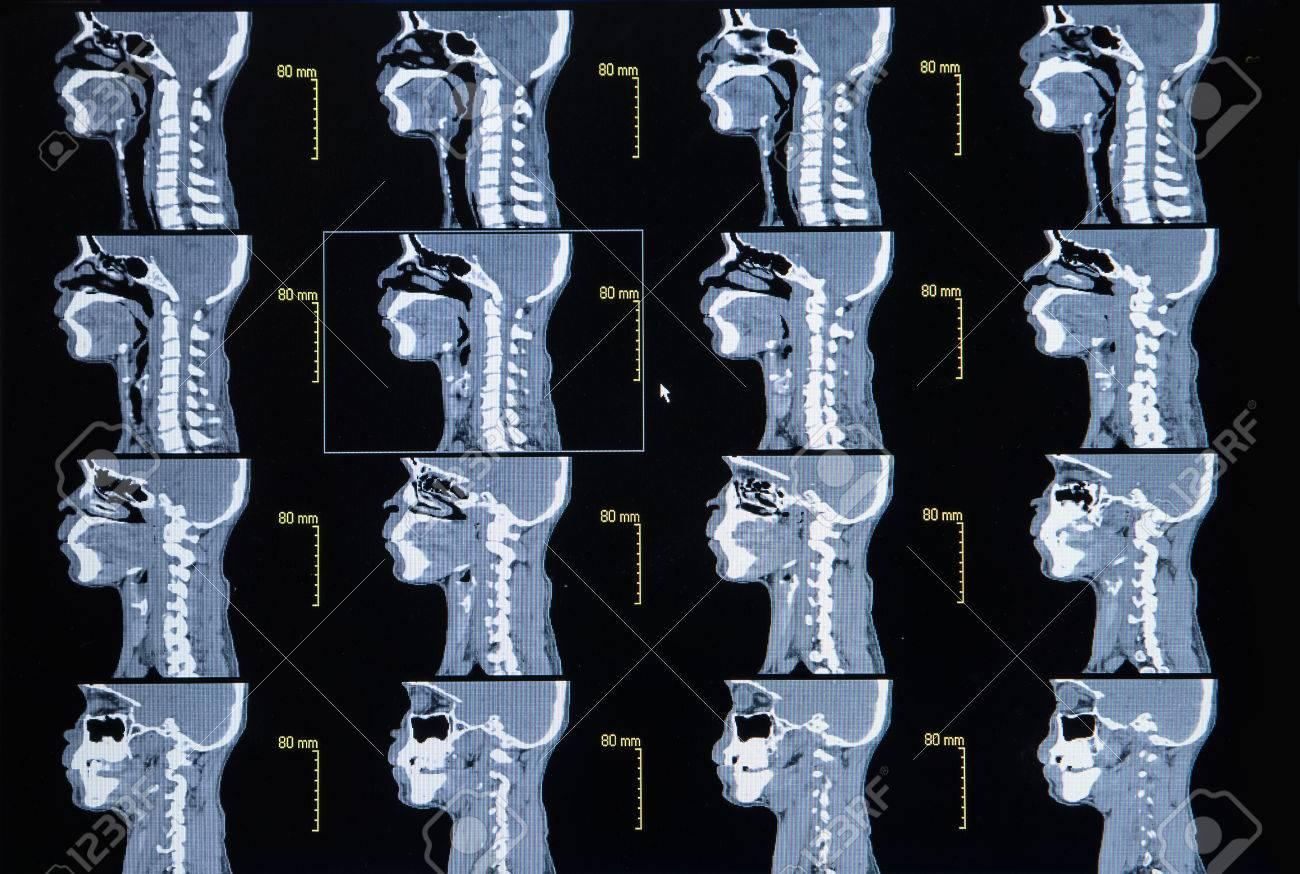 Serie De Imágenes De Una Tomografía Computarizada De Cuello (médula ...