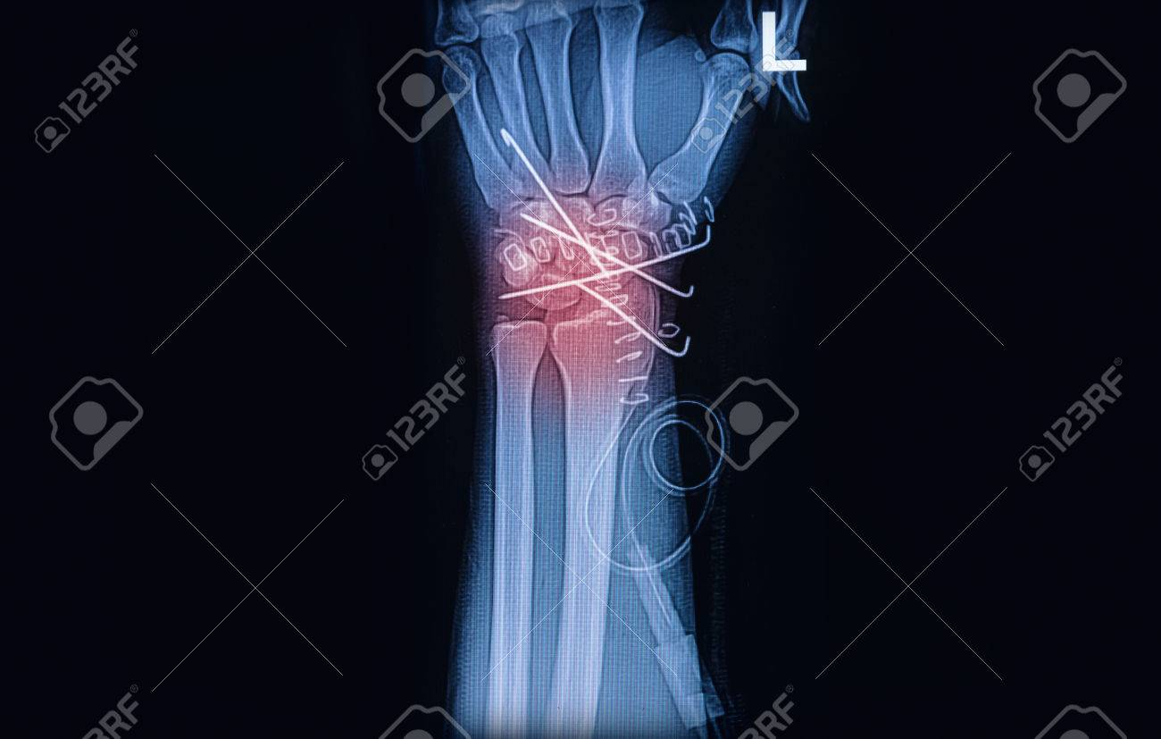 X-ray Image Of Wrist Joint, Showing Radius Fracture With K Wire ...