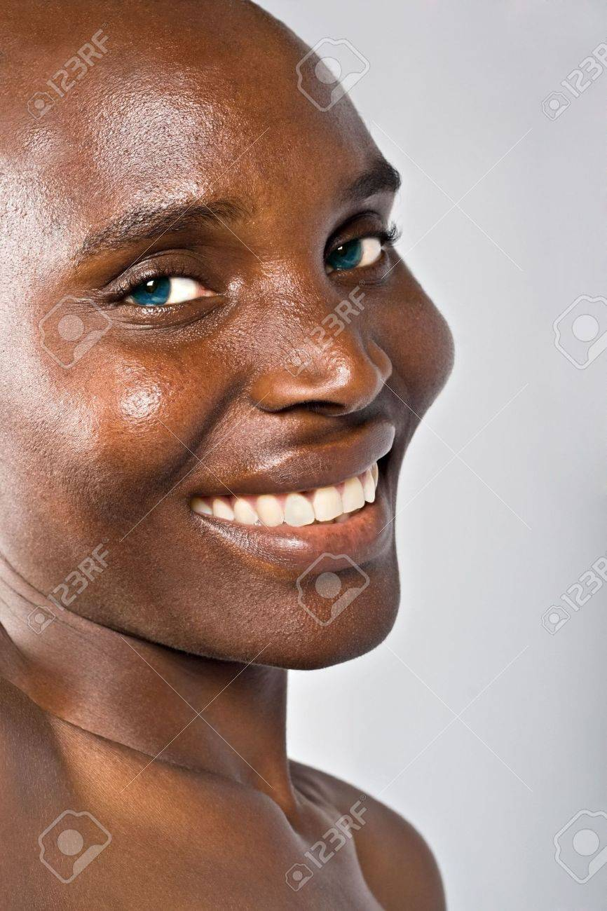 hairless beautiful African woman, cancer patient after chemotherapy Stock Photo - 2113451