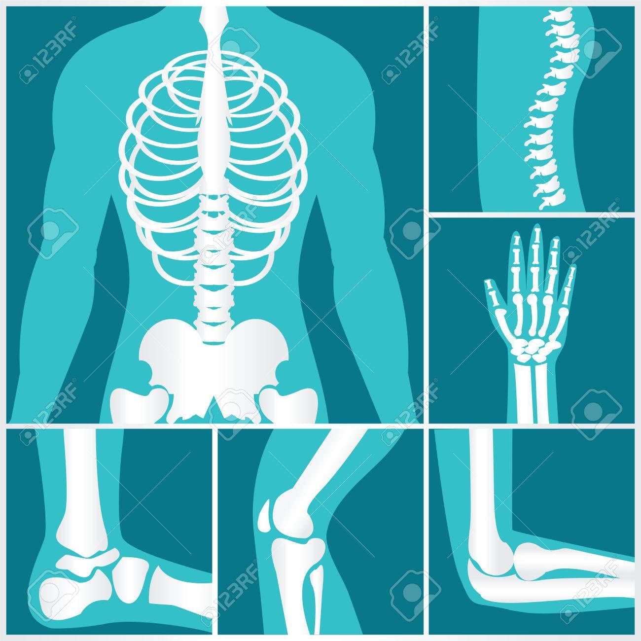 Conjunto De Radiografía De Las Articulaciones Humanas, Esqueletos ...