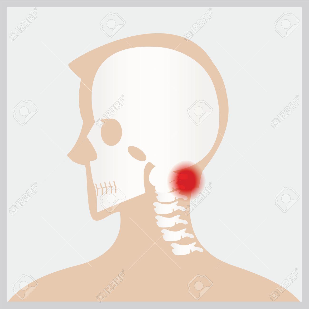 Die Erkrankung Der Kopf Und Hals, Die Gelenke Und Knochen ...