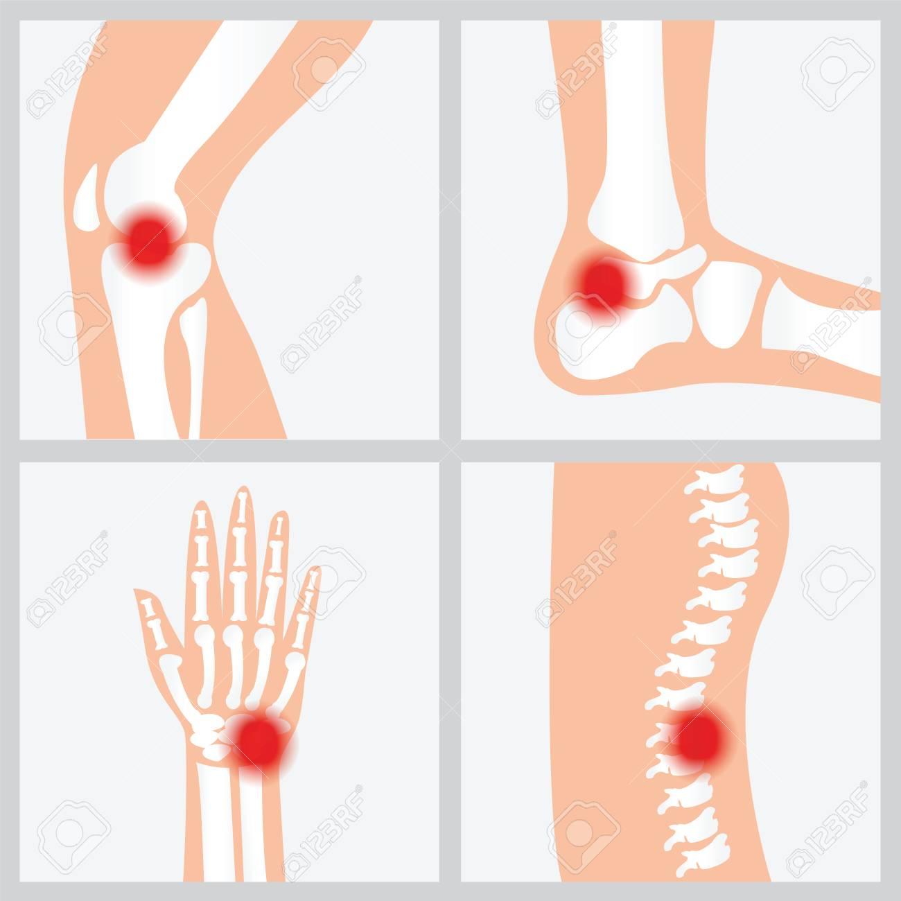 Enfermedad De Las Articulaciones Y Los Huesos, Las Articulaciones ...