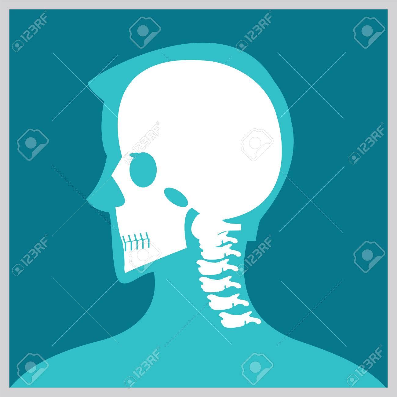 Röntgenstraal Van Hoofd En Hals De Verbindingen En De Beenderen Menselijke Verbindingen Skeletachtige Ruggegraatsbeenstructuur Van Menselijke