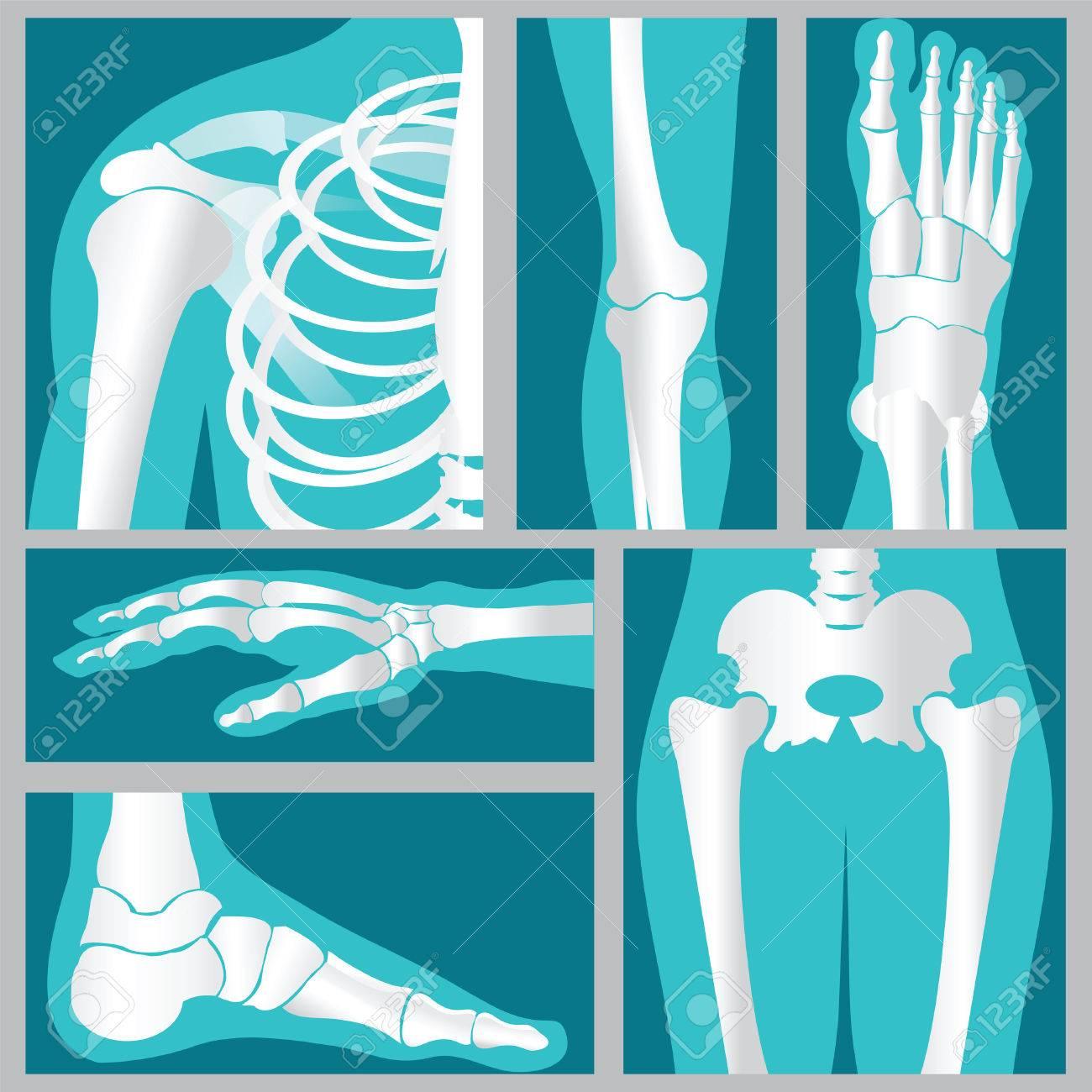 Conjunto De Rayos X De Humanos Articulaciones Humanas Articulación De Rodilla Articulación Del Codo Articulación Del Tobillo Muñeca Esqueleto