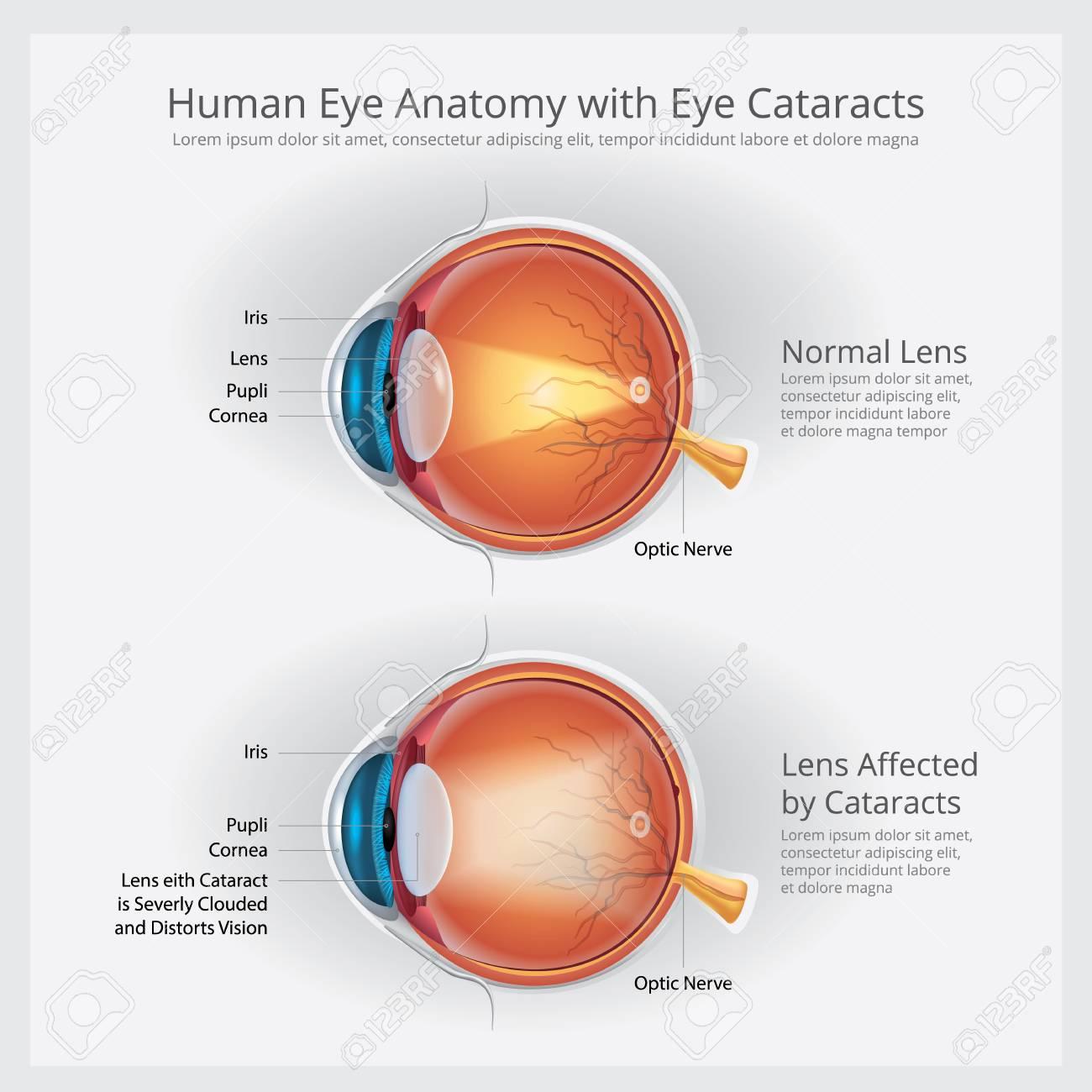 Katarakt-Sehstörung Und Normale Augen-Visions-Anatomie-Vektor ...
