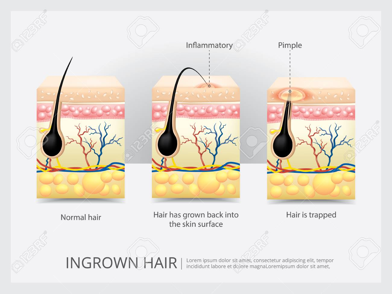 Ingrown Hair Structure Vector Illustration Royalty Free Cliparts