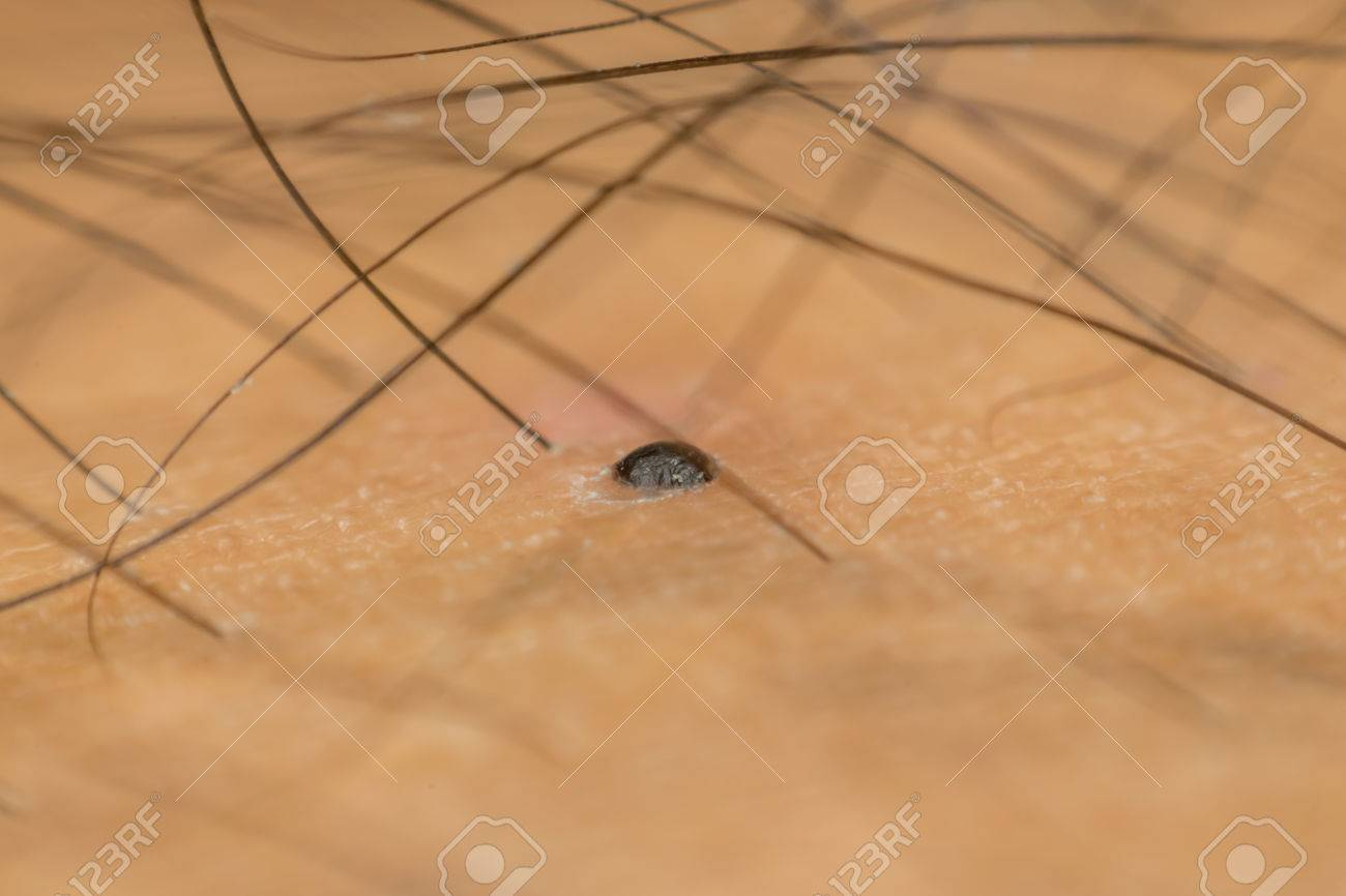 macro of dry skin asian human with black hairy and dermatology