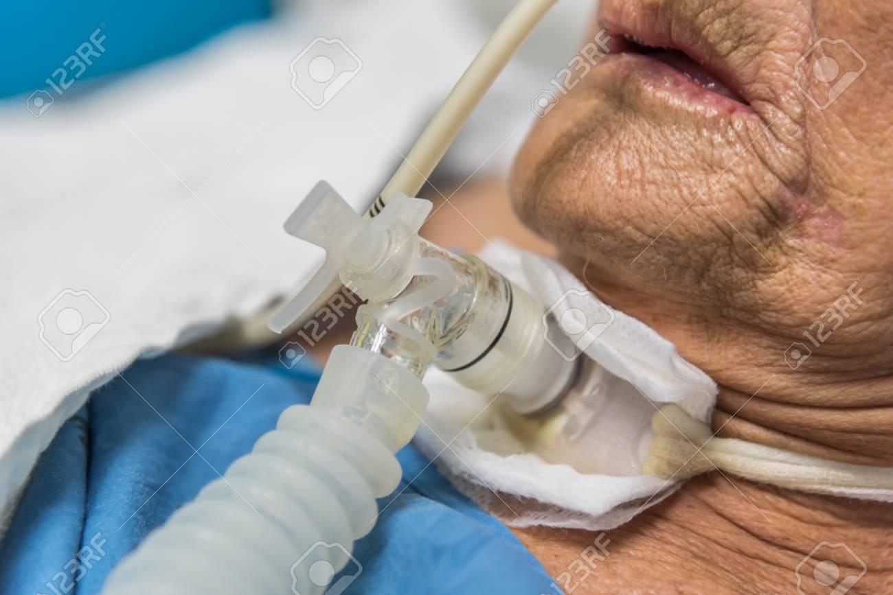 切開 気管