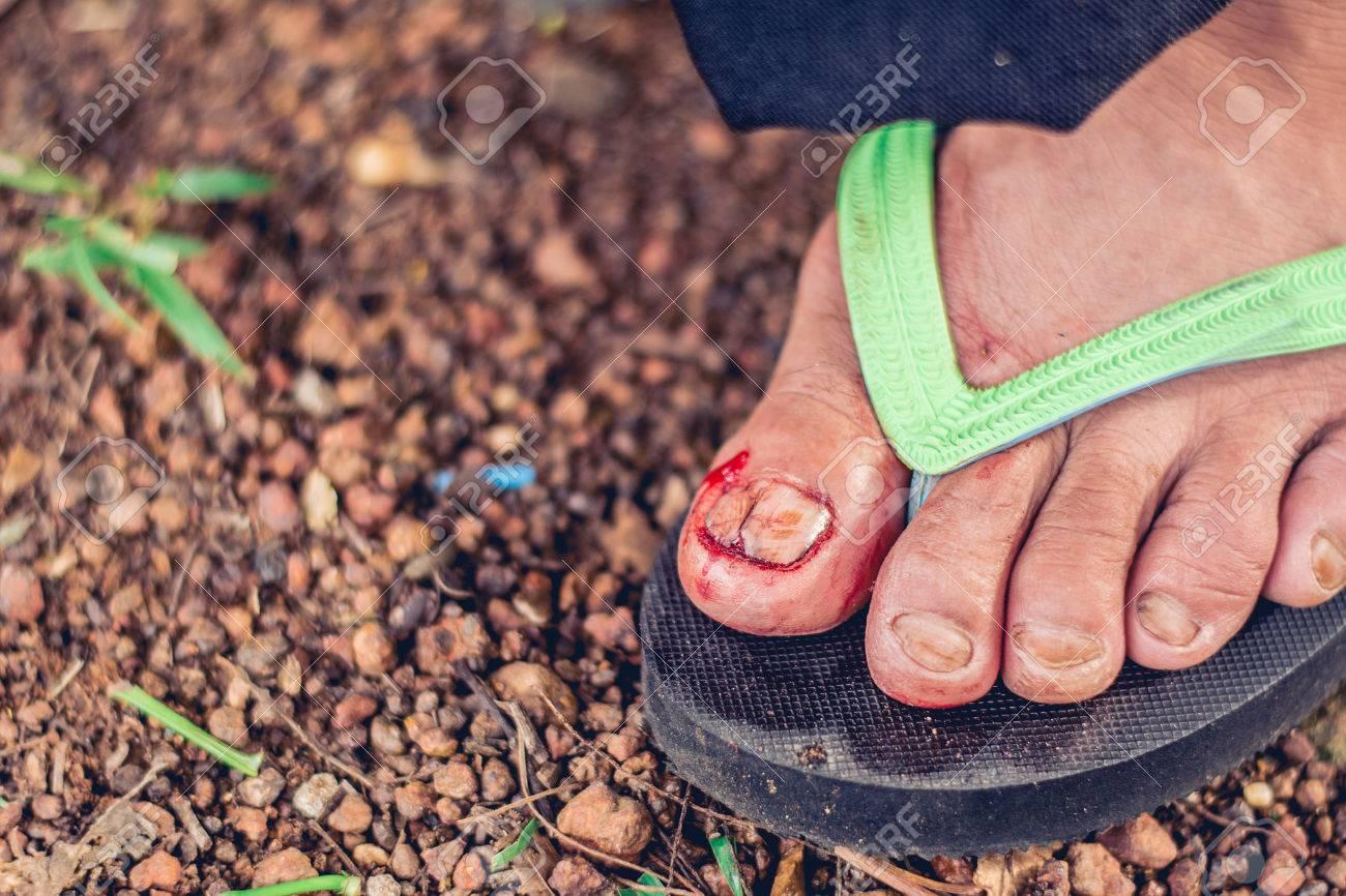 Accidentes De Uñas En Los Pies Traumatismos En Las Uñas Sangrado En Las Uñas De Los Pies úlceras En Los Pies Descifran Un Clavo Onicocryptosis
