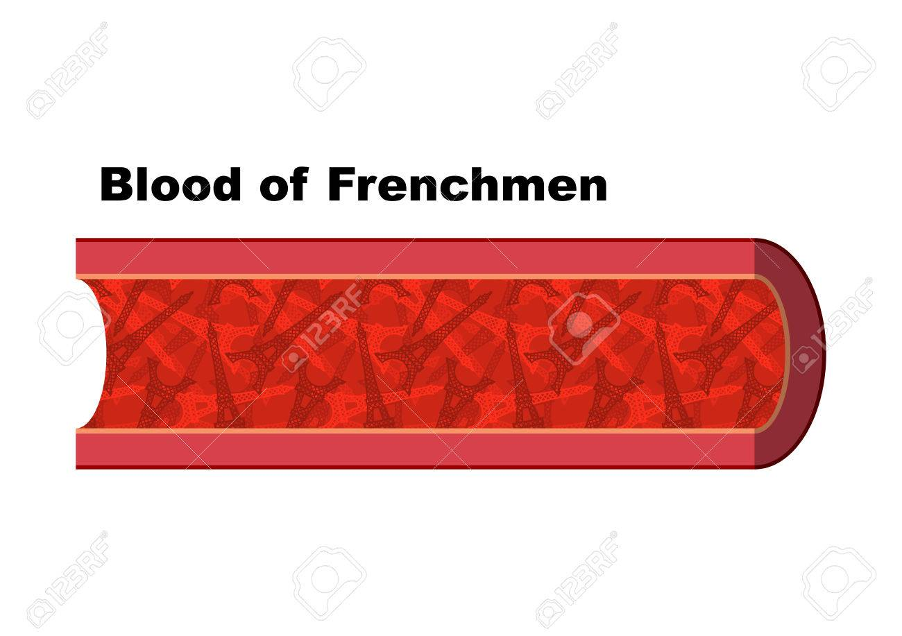 Blut Von Franzosen. Blutzellen In Form Des Eiffelturms. Anatomie ...