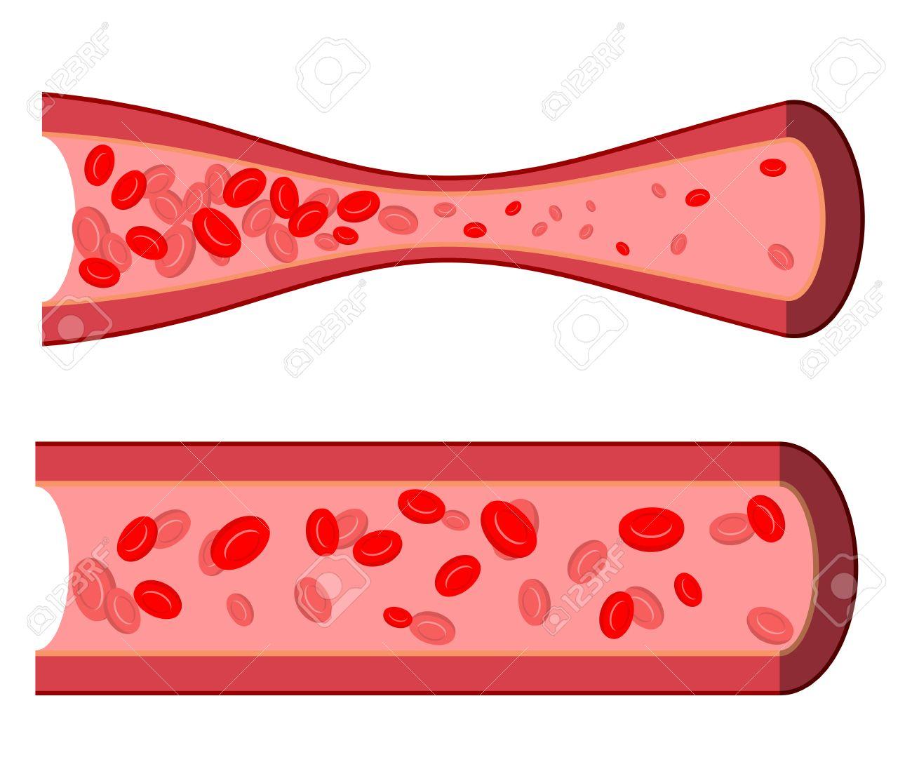 Arteria Sangriento. La Obstrucción De Los Vasos Sanguíneos. Arteria ...