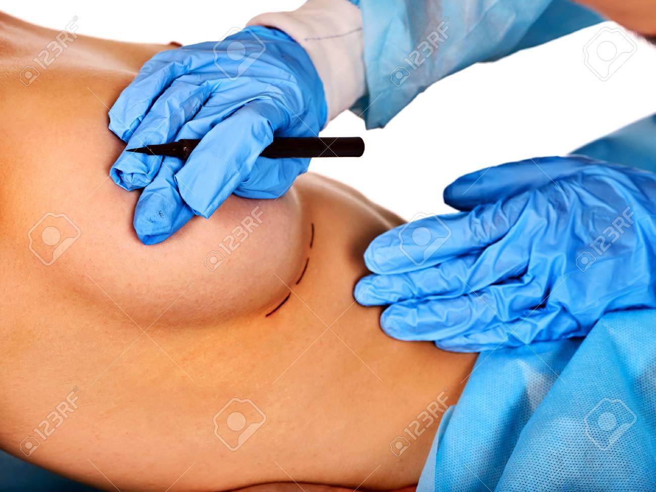 Female breast transplant
