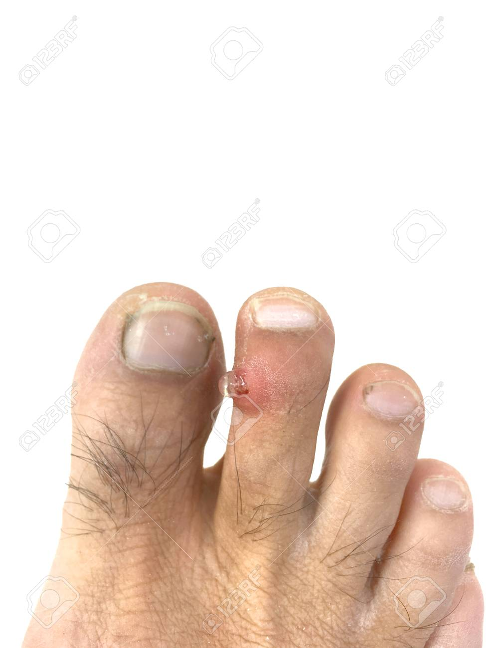 Inflammation, Infection And Pus On The Toe. Stock Photo, Picture And ...