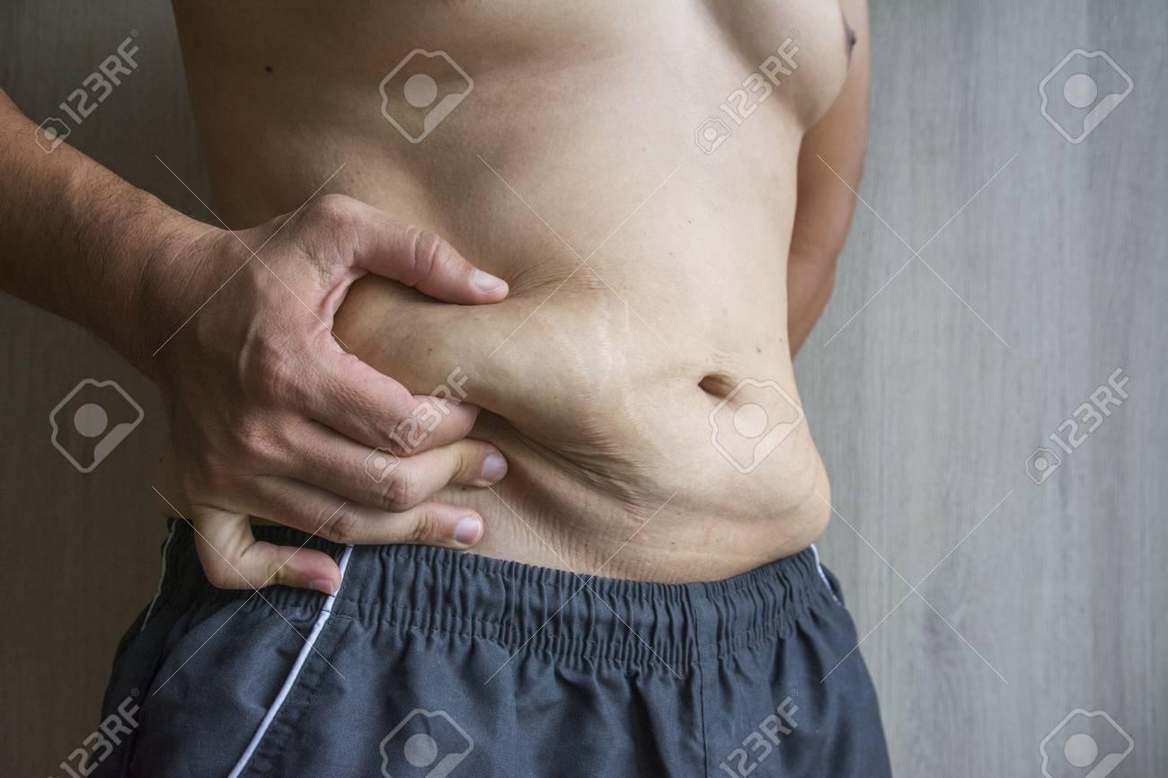Schwangerschaftsstreifen männer