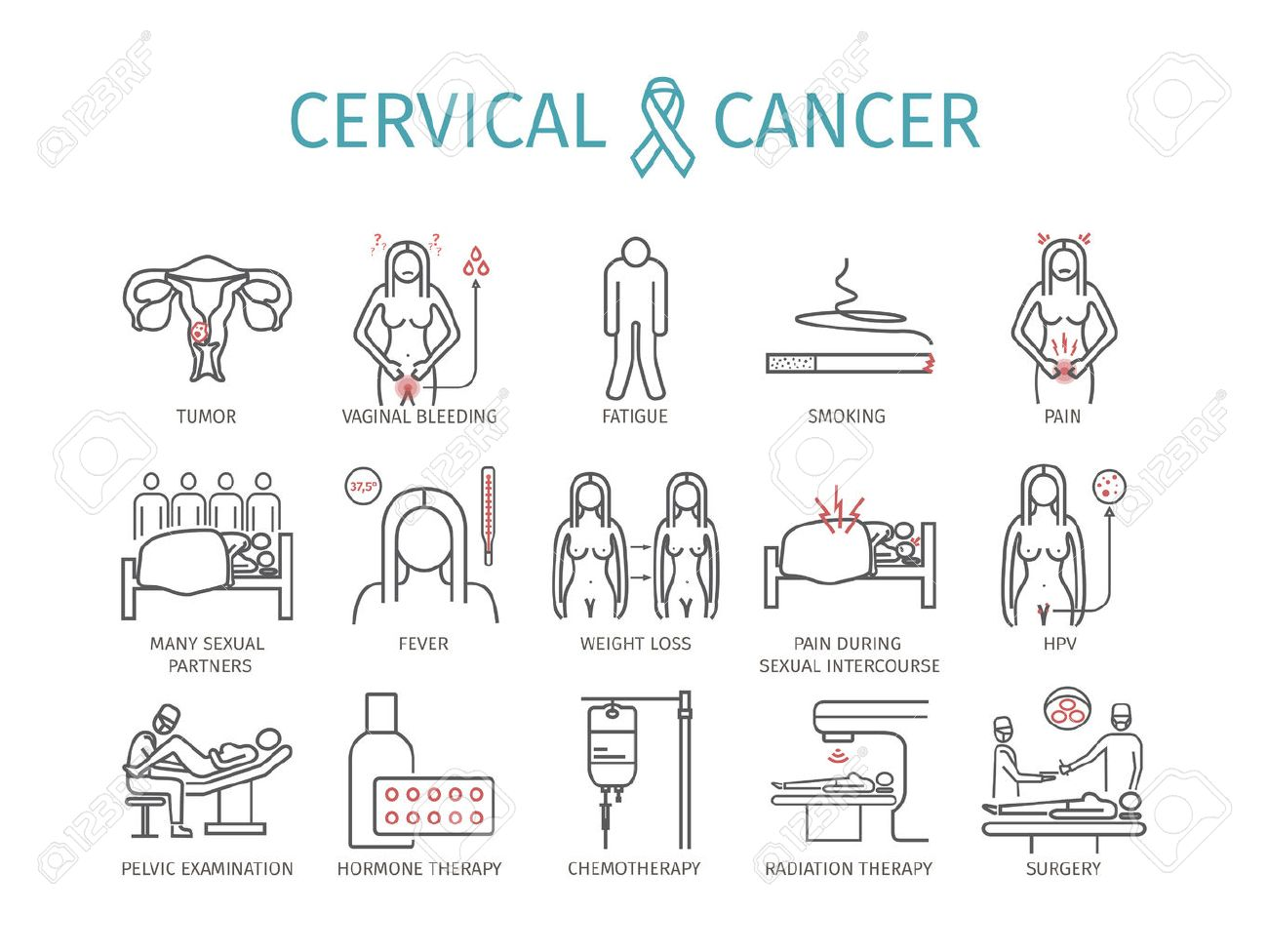 Cervical cancer: symptoms, causes, treatment