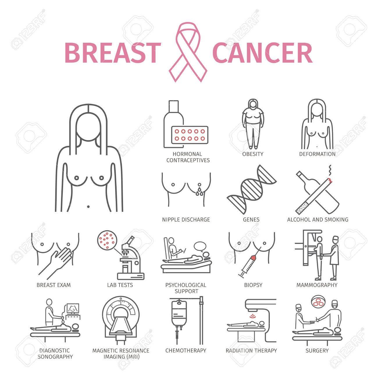 causas de los síntomas del cáncer de próstata femenino