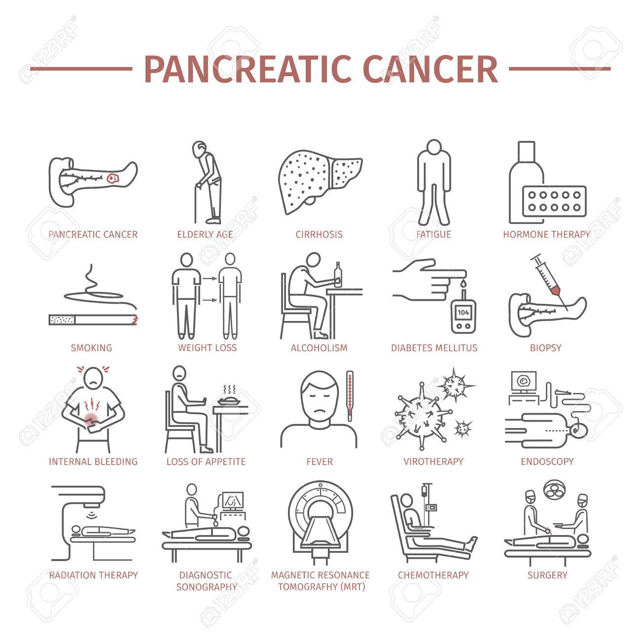 Síntomas Del Cáncer De Páncreas Pancreático. Causas. Fotos, Retratos ...