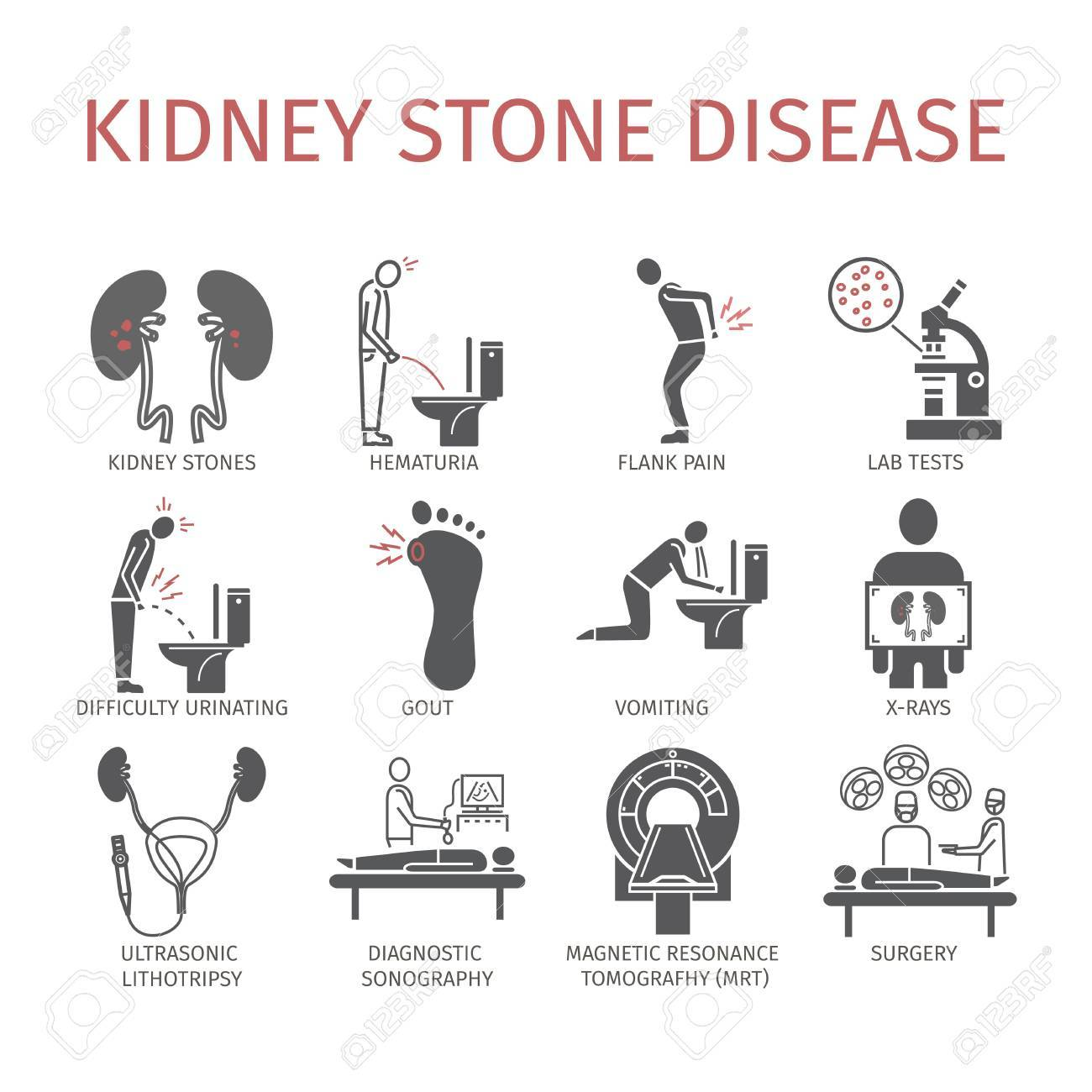 Kidney stone pain location diagram application wiring diagram kidney stone pain location diagram images gallery ccuart