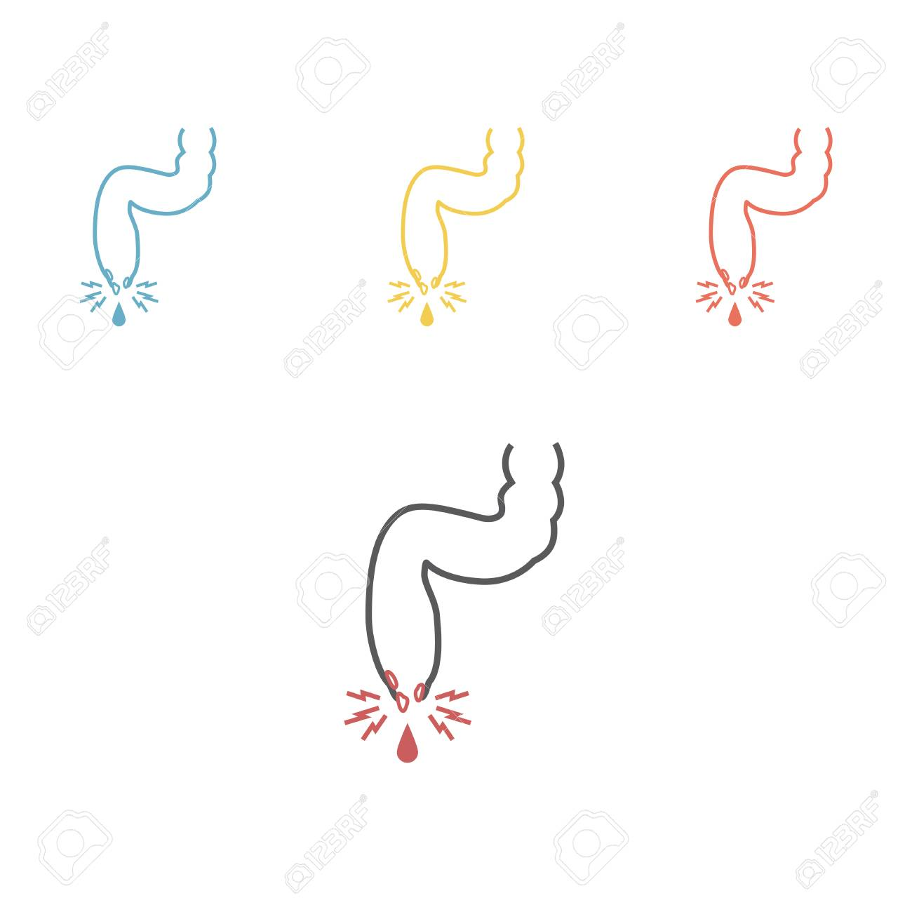 Ilustración Vectorial De Un Prolapso De Las Venas De Hemorroides ...