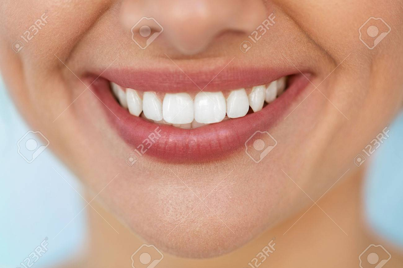 Beautiful Smile With White Teeth. Closeup Of Smiling Woman Mouth With Natural Plump Full Lips And Healthy Perfect Smile. Teeth Whitening, Dental Health And Lip Care Concepts. High Resolution Image - 61732745