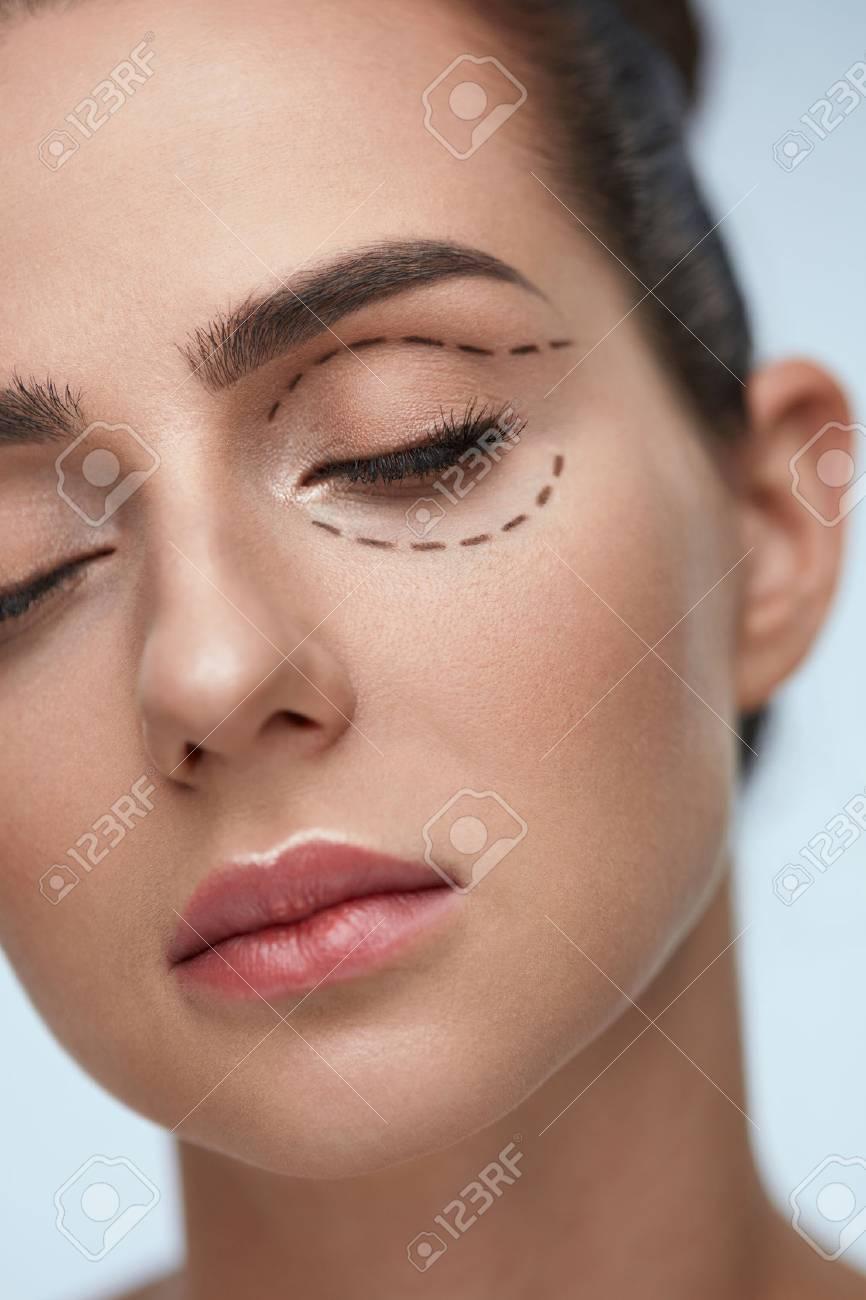 Plastic Surgery Operation Closeup Beautiful Young Woman Face