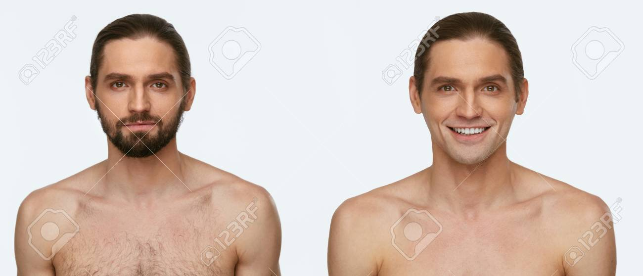 Man Face Before And After Shaving Handsome Male With And Without Stock Photo Picture And Royalty Free Image Image 100516297