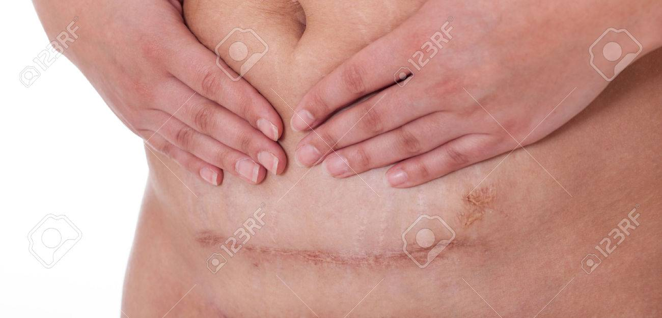 scar from a c-section birth on a whire background. Banque d'images - 53613335