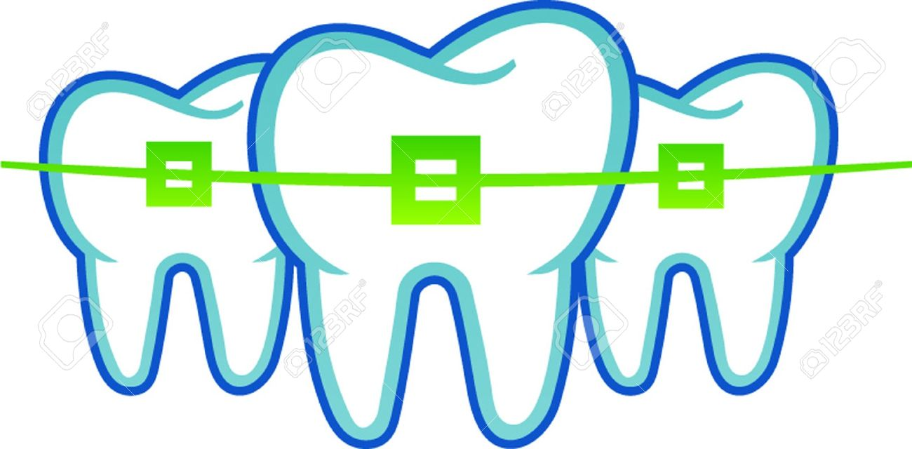 dental braces Stock Vector - 21012711