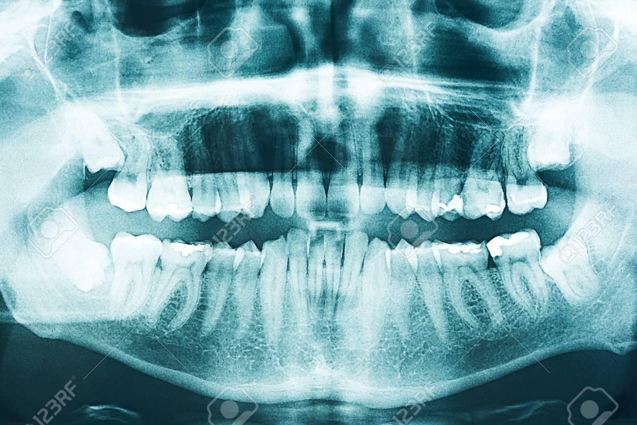 Panorámica Dental X-Ray De Dientes Humanos Fotos, Retratos, Imágenes ...