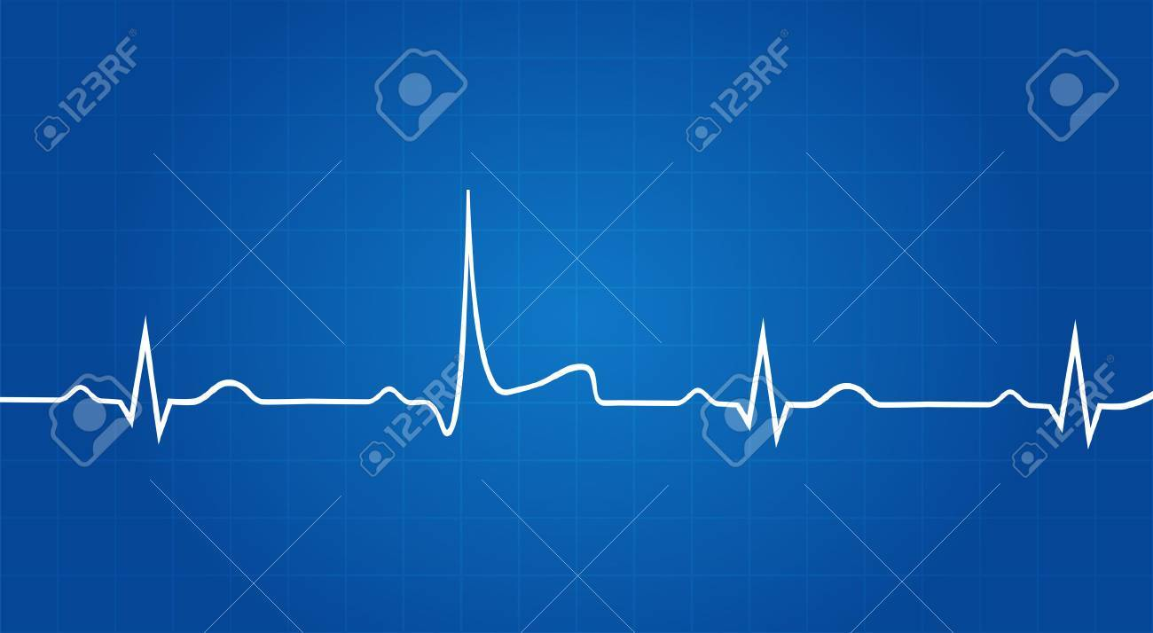Blueprint of heart attack on electrocardiogram royalty free cliparts blueprint of heart attack on electrocardiogram stock vector 33446038 malvernweather Gallery