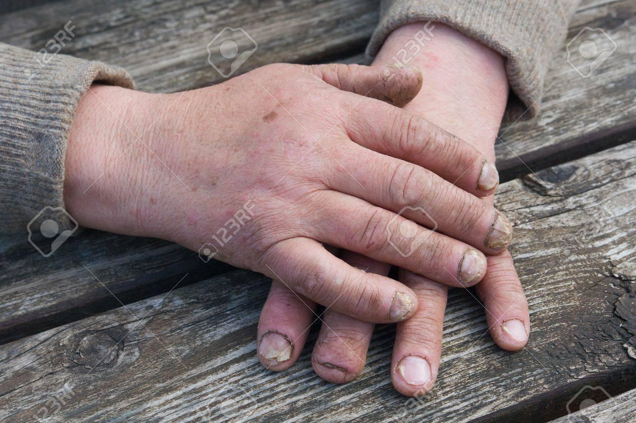 Banque dimages , Infection par le champignon sur des ongles des mains homme âgé