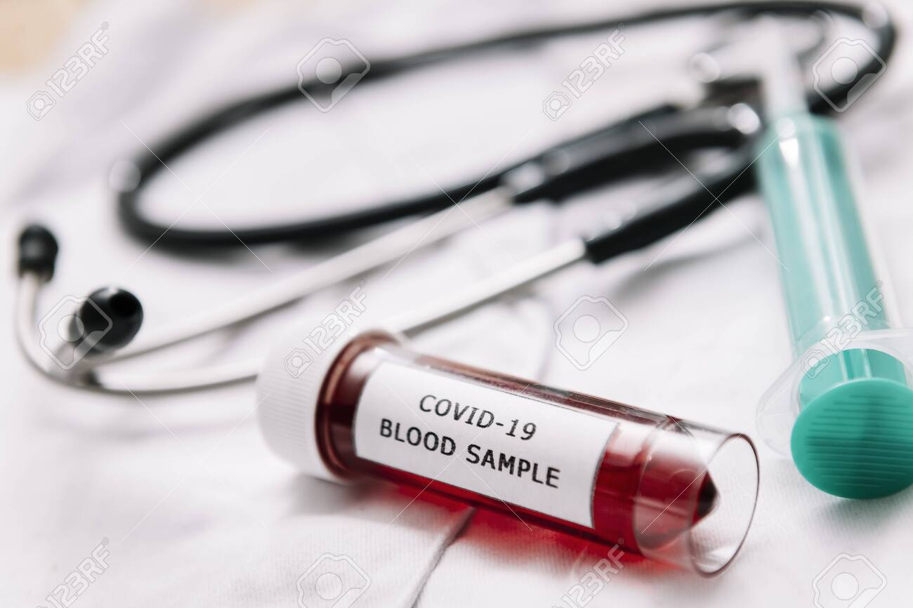 medical equipment and test tube with a blood sample infected with coronavirus on a white doctor gown, health and medicine concept, selective focus - 143057118