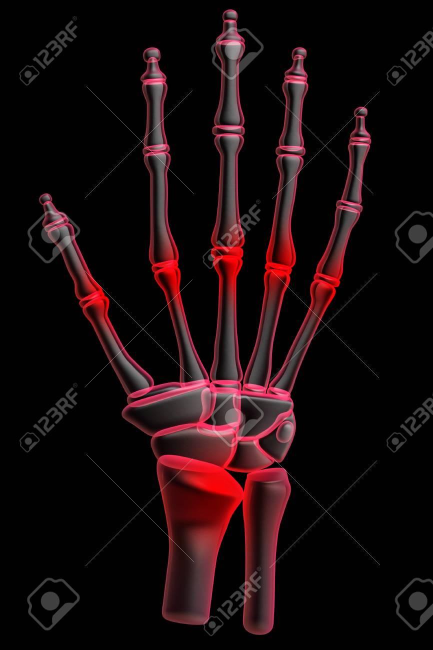 3d human hand pain Stock Photo - 8948139