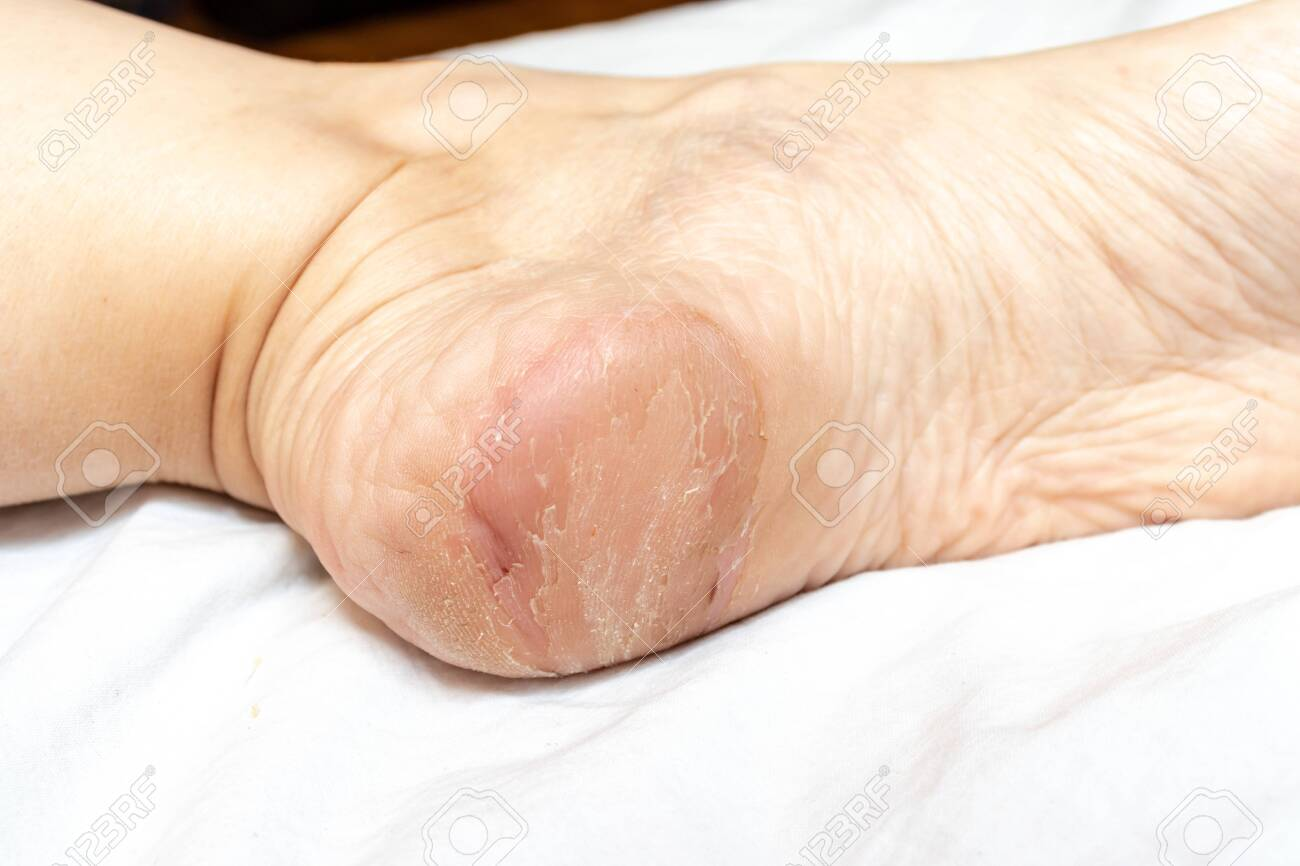 Damaged Cracked Dry And Peeling Skin On A Heel Of Foot Close Stock Photo Picture And Royalty Free Image Image 128205689