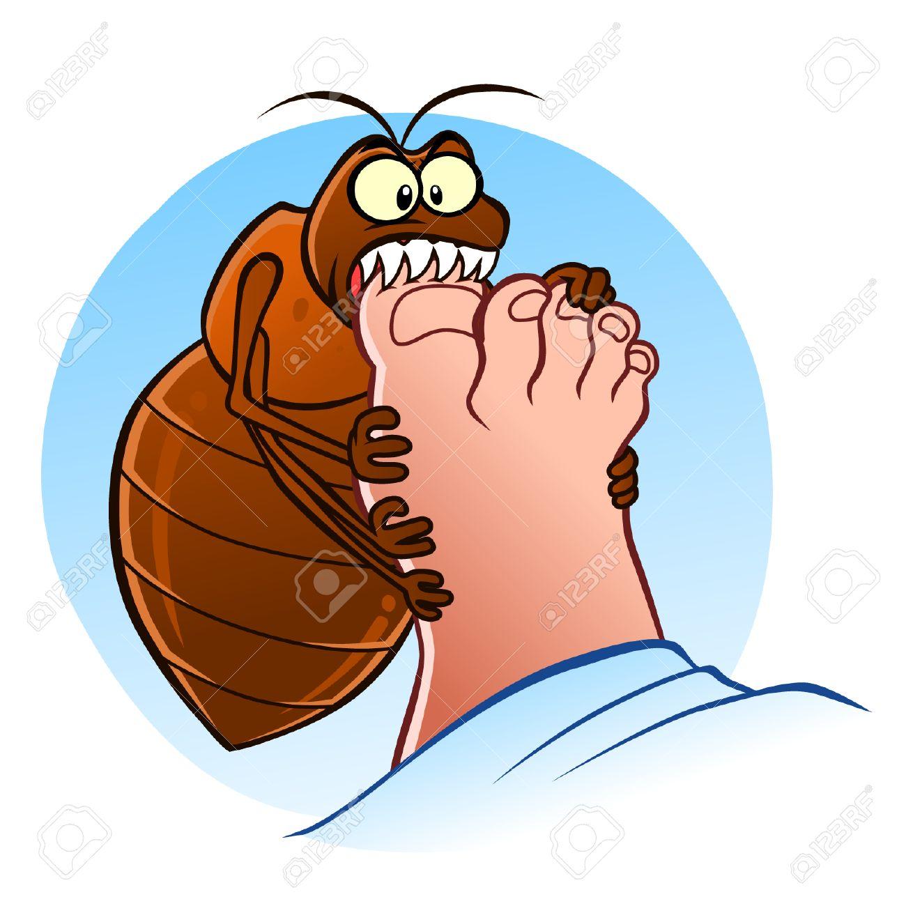 Bedbug bites - 39645634