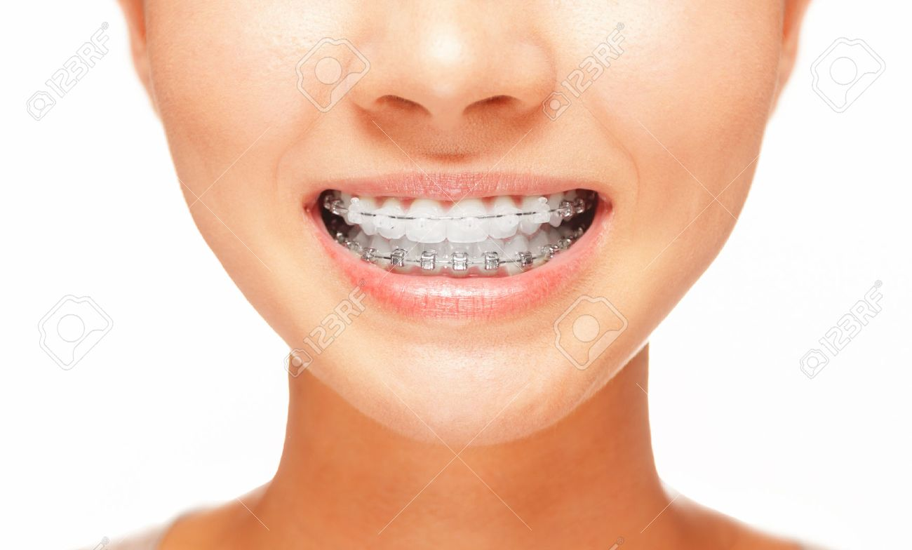 Female smile: teeth with braces, dental care concept, front view - 37663141