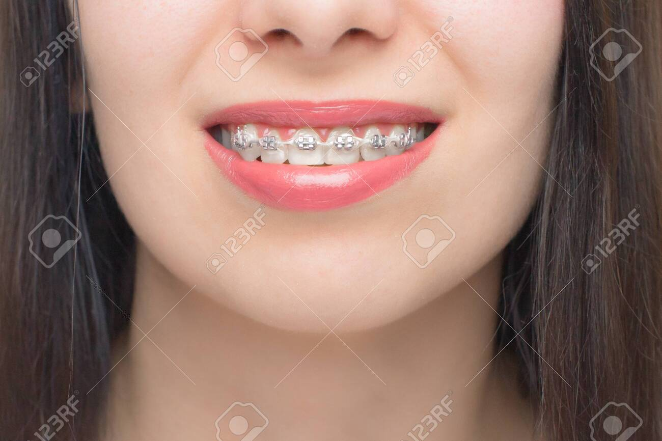 Young woman smile with dental braces. Brackets on the teeth after whitening. Self-ligating brackets with metal ties and gray elastics or rubber bands. Orthodontic teeth treatment. - 141224358
