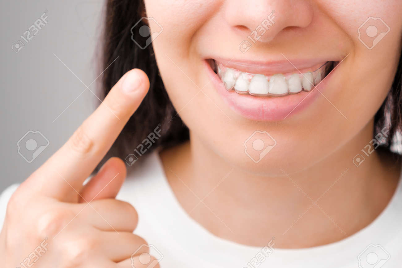 Happy woman with a perfect smile shows with finger on transparent aligners on her teeth - 159430162