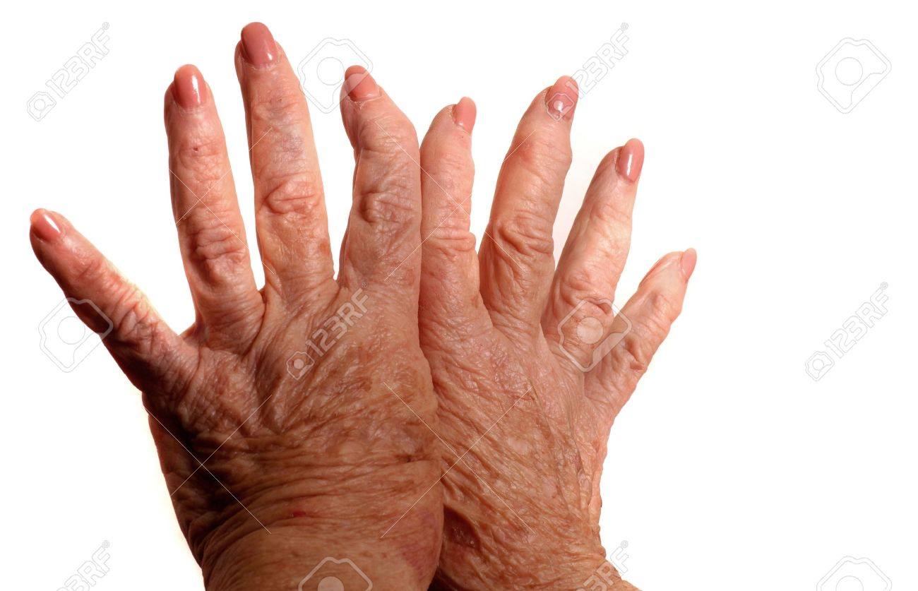 Hands With Arthritis Stock Photo - 11000845