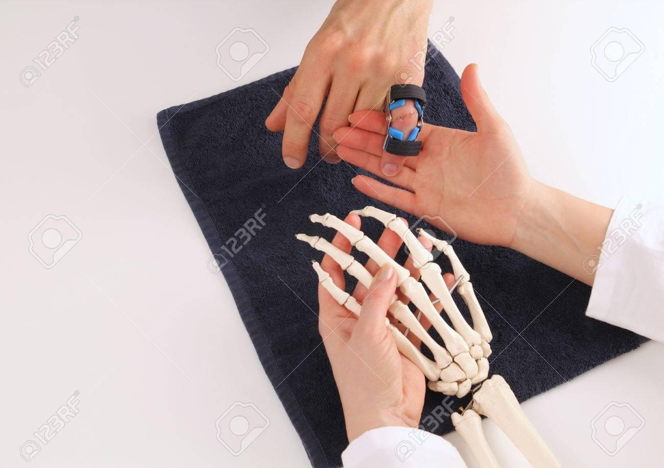 Hand surgeon explaining a patient his injury Standard-Bild - 26955872